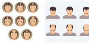 Como saber se a pessoa vai ficar careca