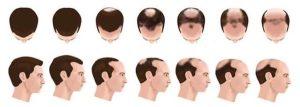 Quando a queda de cabelo é considerada calvície?